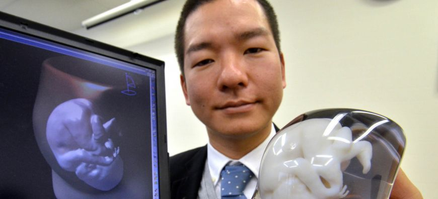 Firm offering 3-D models of fetuses | The Japan Timesnn models