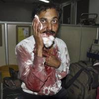 Intelligence failure?: An injured man awaits treatment late on Thursday after two bombs went off in Hyderabad, India. | AP