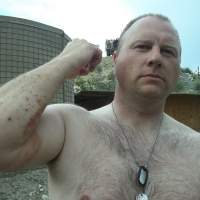 Shrapnel sores: Army Pfc. Ted Daniels shows where shrapnel hit his arm during an April 2012 firefight in Afghanistan. | THE WASHINGTON POST
