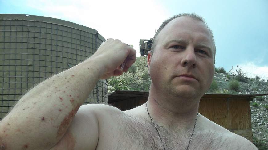 Shrapnel sores: Army Pfc. Ted Daniels shows where shrapnel hit his arm during an April 2012 firefight in Afghanistan.