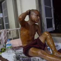 Excessive force: A Buddhist monk injured in a crackdown on a protest at a copper mine in Monywa, Myanmar, rests at a hospital on Dec. 2 after he was transferred to Mandalay for better treatment. According to a new parliamentary report, police used phosphorus in the crackdown. | AFP-JIJI