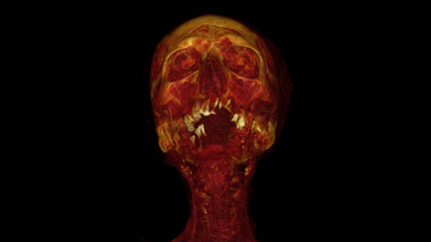 The human condition: A CT reconstruction of the mummy Hatiay, a male scribe who died at age 40 to 50 during the New Kingdom (1570-1293 B.C.), revealed calcification of the arteries.