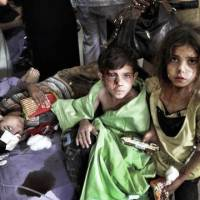 Faces of the conflict: Syrian children wounded in regime airstrikes are treated in the town of Azaz on the outskirts of Aleppo last August. | AP