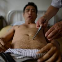 Honeybee sting acupuncture creates a buzz