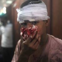 Bloodied: An injured Egyptian youth tries to stop blood flowing from his nose at a makeshift hospital in Cairo on Wednesday. | AFP-JIJI