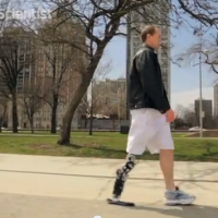 Man uses thought to control robotic leg via rerouted nerves