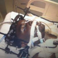 U.S. judge mulls video of paralyzed man's murder suspect ID through blinks