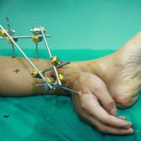 Gotta hand it to him: Chinese doctors save a man's severed hand by grafting it to his ankle before later reattaching it to his arm | AFP