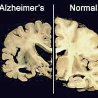 Researchers find key Alzheimer's protein