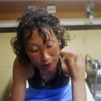 Diving instructor Saori Furukawa, 37, recovers after being found alive Monday in Bali. | KYODO