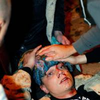 Iraq War vet hurt at protest wins suit