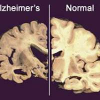 Dastardly disease: This graphic shows the damage Alzheimer's does to the brain. | AP