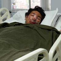 Nepalese mountaineer Dawa Tashi Sherpa, who survived Friday's avalanche on Mount Everest, lies in the intensive care unit at Grandi International Hospital in Katmandu later the same day. | AFP-JIJI