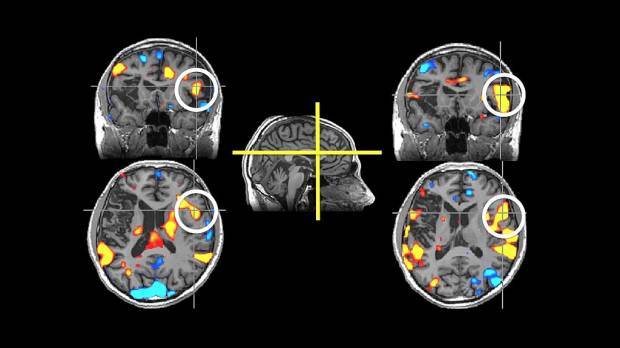 PET scans may help identify recovery potential for vegetative patients