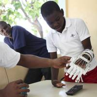 Haitian orphan gets 3-D printed prosthesis
