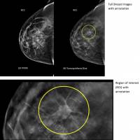 3-D imaging detects more breast cancer than mammography