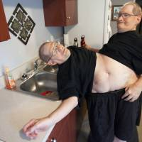 U.S. conjoined brothers aim for age record