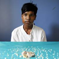 Indian teen has over 200 teethlike objects extracted