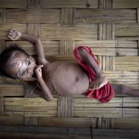 Dosmeda Bibi, born just over a year ago, lies on a bamboo stand close to a medical clinic north of Sittwe, in Myanmar's Rakhine state, on June 25. She has spent her short life confined to a camp for one of the world's most persecuted religious minorities, and like a growing number of other Rohingya children, she's showing signs of severe malnutrition. | AP