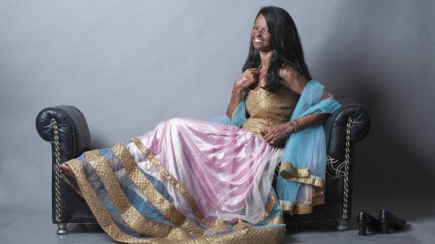 Acid attack photo shoot gets India's attention