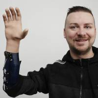 Bionic hands nearly as good as transplants