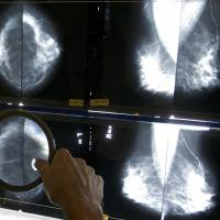 U.S. doctor group looks to clear the air about screening for cancers